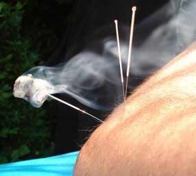 Acupuncture & Moxa