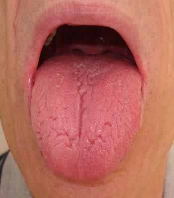 Tongue Diagnosis -red tongue
