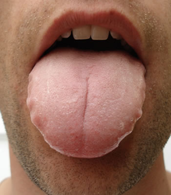 tongue diagnosis - swollen tongue