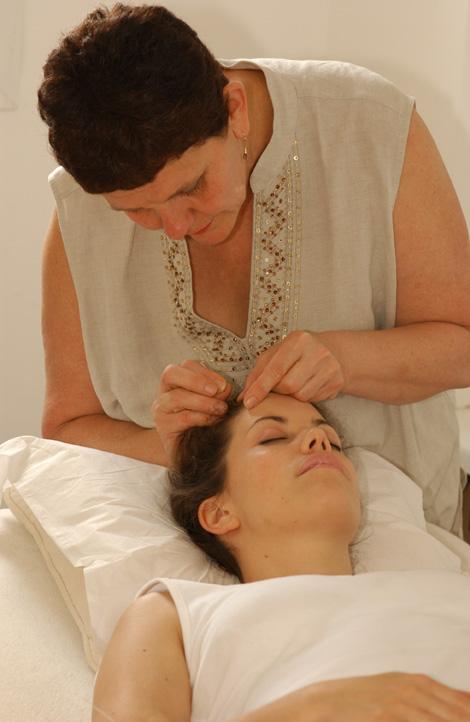 Maria Mercati doing Acupuncture