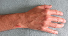 Microsystems Wrist & Ankle Acupuncture