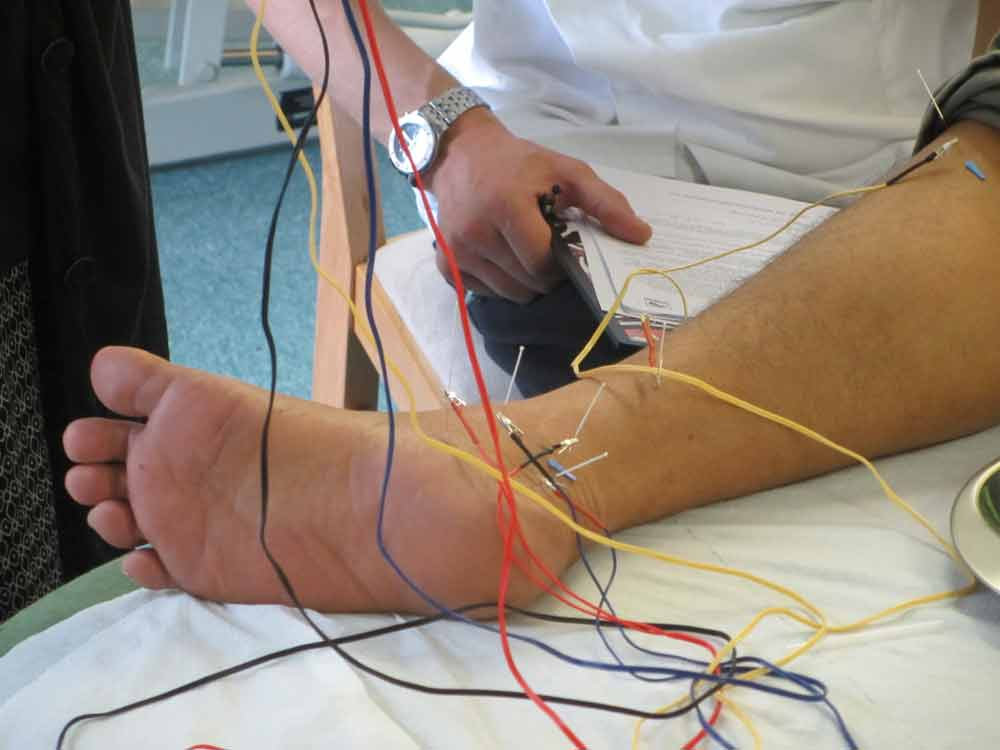 CPD Electro-acupuncture